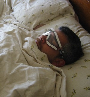Bill asleep after surgery wearing sexy goggles.